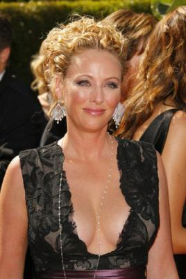 Virginia Madsen at the Oscars, shortly after receiving Botox
